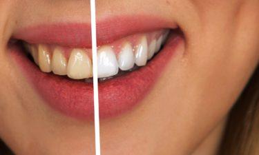 Schöne weiße Zähne durch Bleaching