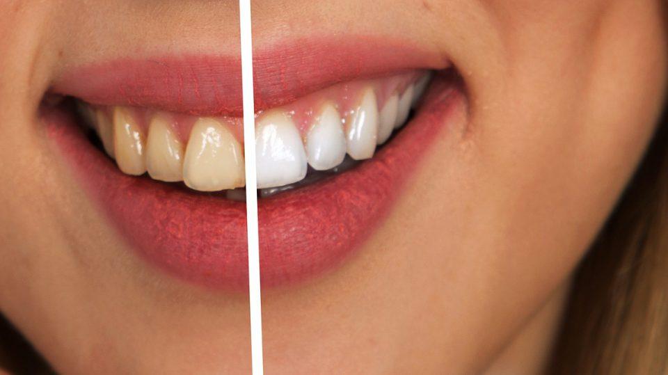 Weiße Zähne durch Bleaching? So funktioniert der Prozess