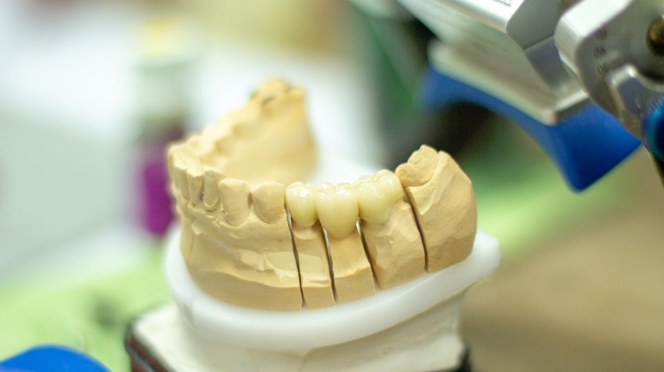 Informationen zum Zahnersatz